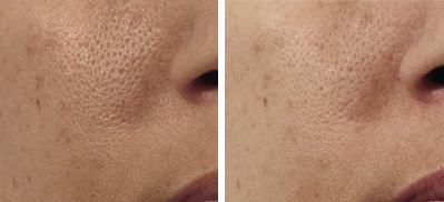 Odmłodzenie skóry twarzy
