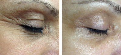 Zmarszczki wokół oczu - przed i po zabiegu